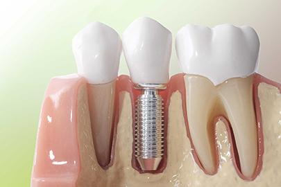 Zahnarzt Sittel Implantologie