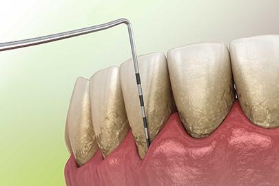 Zahnarzt Sittel Parododontologie